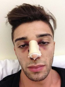 Andrea Iannone has had surgery on his nose